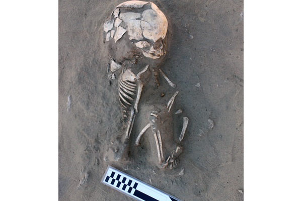 Pre-Dynastic infant with scurvy found near Aswan