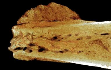 Oldest evidence of human cancer from 1.7 million years ago