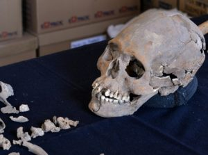 Skeleton with encrusted teeth (by PhysOrg)