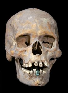 Skull of the skeleton with encrusted stones (by PhysOrg)