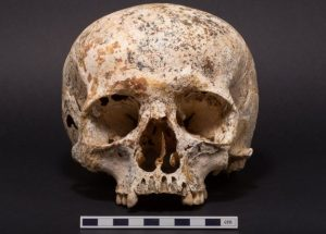 Skull that underwent facial reconstruction (by BBC News)