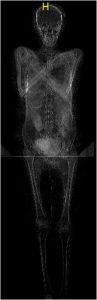 CT scan of the mummy (by Olek Leydo)