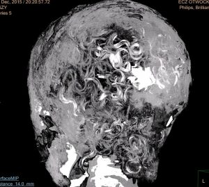 CT scan of the mummy revealing its hair (by Nauka w Polsce)