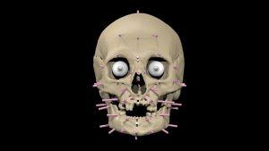 3D model of the skull with markers (by Michał Rylik, Dorota Lorkiewicz-Muszyńska)