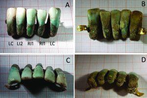 The teeth (by Simona Minozzi)