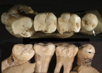 Markings on Neanderthal teeth as evidence of Prehistoric dentistry