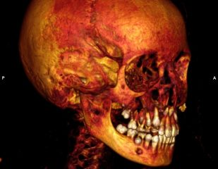 CT scans reveal cases of cancer of mummified individuals