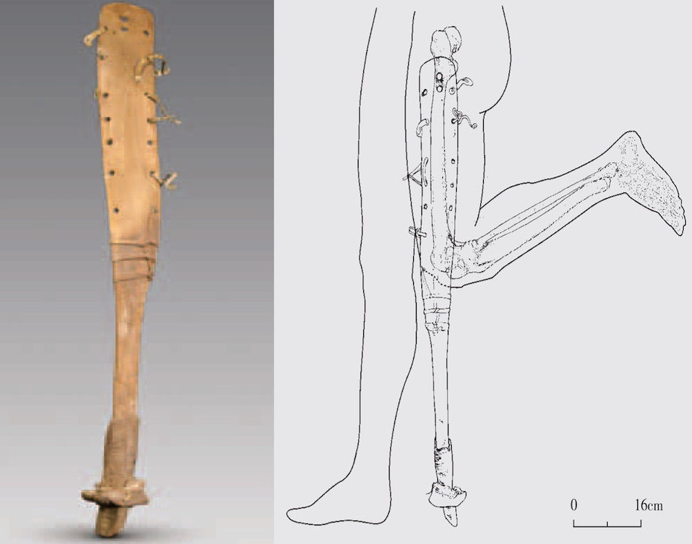 Prosthetic leg discovered in ancient Chinese tomb