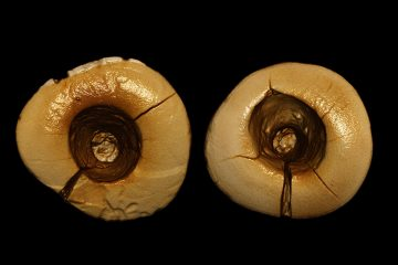 13000-year-old teeth with bitumen fillings found