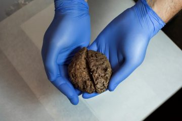 Mass grave yields dozens of naturally preserved brains
