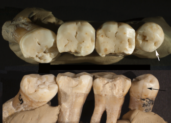 Markings on Neanderthal teeth as evidence of Prehistoric dentistry